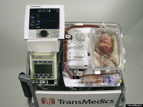 First-Ever 'Dead Heart' Transplants Performed By Surgeons In Australia