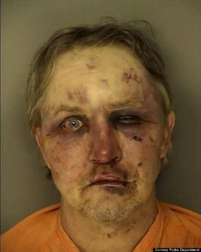 William Mattson Beaten To Bloody Pulp After Allegedly Raping Nephew's Girlfriend