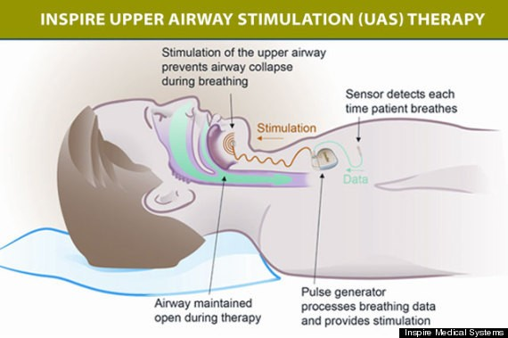 Mild Electronic Stimulation Therapy Effective For Sleep Apnea, Study Finds