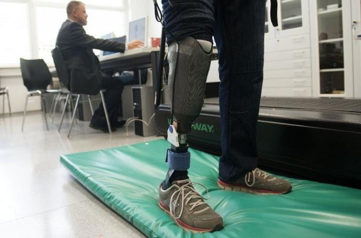 World's first 'feeling' prosthetic limb returns sense of touch to amputees