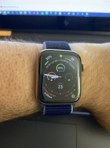 An Apple Watch Story That Hits Home For Me