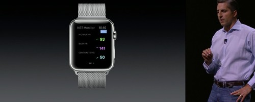 Everything You Need to Know About Apple Watch OS 2