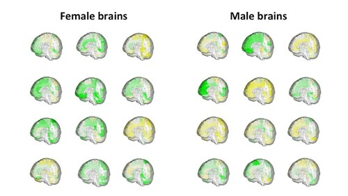 There's no such thing as a 'male brain' or 'female brain,' and scientists have the scans to prove it