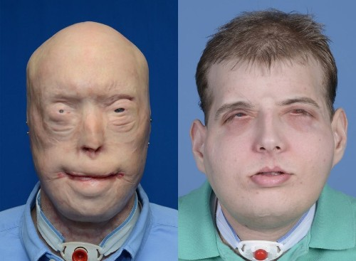 Most extensive face transplant ever performed is a success in New York