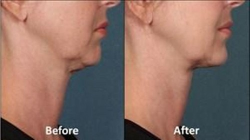 Too many chins? FDA clears a treatment for that