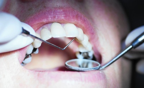 Why are 'holistic' dentists on the rise? They treat the whole body, not just teeth