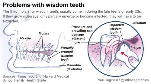 Dentists debate need to extract wisdom teeth