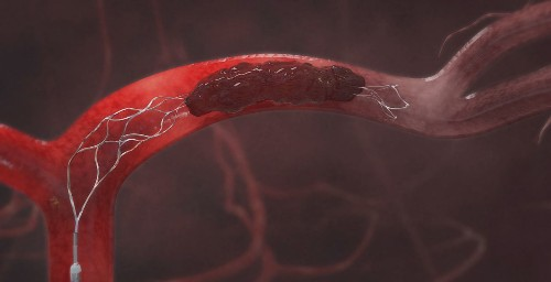 Clot-removal device paired with drug shows benefits for stroke patients