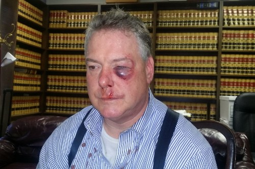Orange County district attorney's office can stay on case despite courthouse brawl - Los Angeles Times