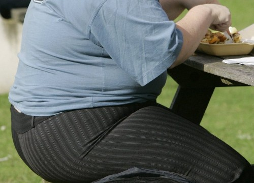To prevent or reverse obesity and its ills, timing may be everything - Los Angeles Times