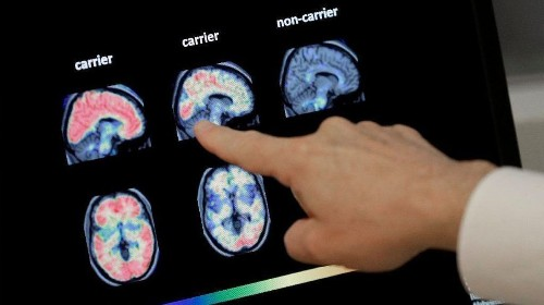 If California wants to prepare for the coming Alzheimer's epidemic, it must pass this legislation