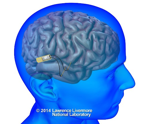 Pentagon spurs new work on a brain implant to aid memory problems