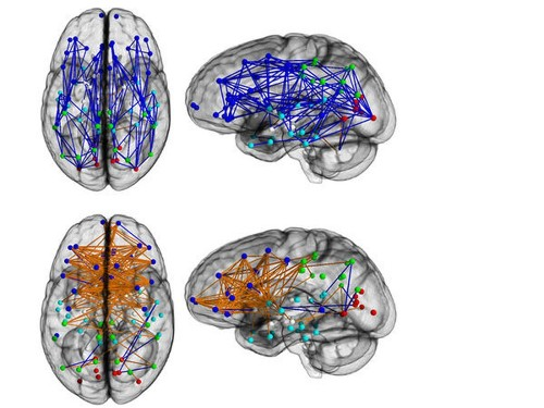 Brains of women and men show strong hard-wired differences - Los Angeles Times