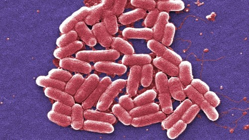 L.A. County patient was infected with drug-resistant E. coli