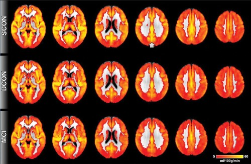 Radiologists use MRIs to find biomarker for Alzheimer's disease
