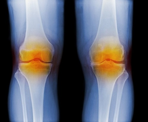 Study finds acetaminophen to be useless in relieving osteoarthritis pain