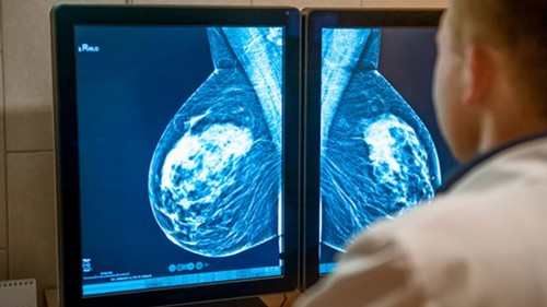 Preventing breast cancer just got easier. Will more women give these drugs a try? - Los Angeles Times