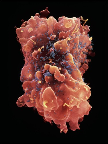 Can a transplant drug help eliminate lingering HIV infections?
