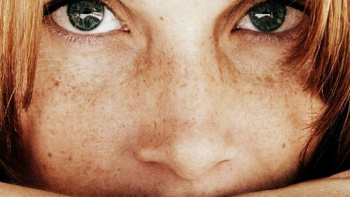 A genetic link between red hair, freckles and skin cancer