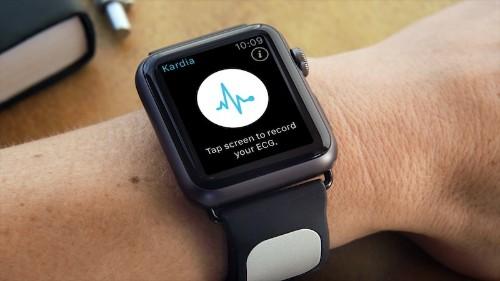 AliveCor Announces Apple Watch 'Kardia Band' for Medical Grade EKG Analysis