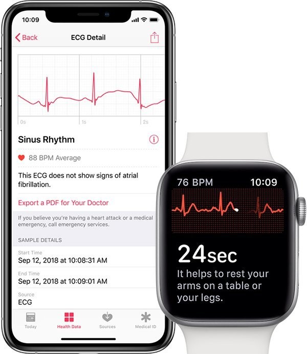 Apple Releases watchOS 5.3 With Walkie-Talkie Bug Fix, ECG Support for Canada and Singapore