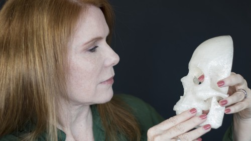 How a man used 3D printing to help treat his wife's brain tumor