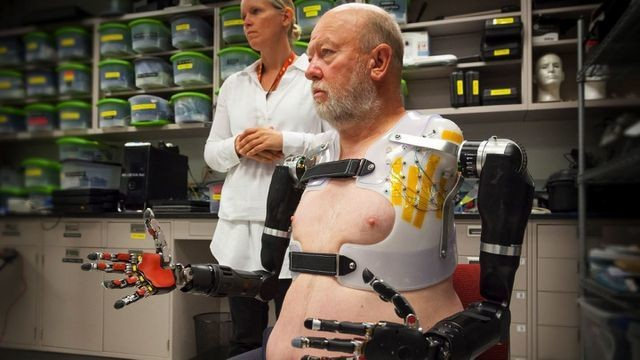 Double amputee controls bionic arms with his mind