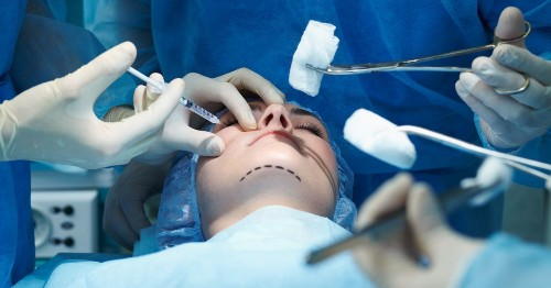 Explicit plastic surgery before-and-after photos exposed in unsecured database