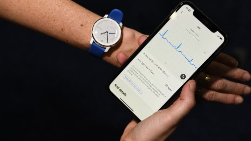 Withings ECG smartwatch is an analog Apple Watch killer