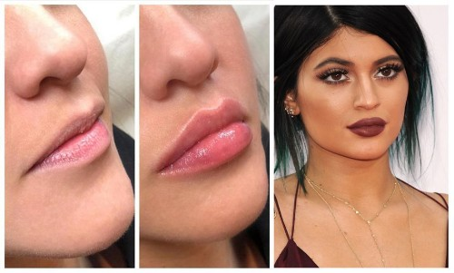 Meet Lip Threads, the New Lip Fillers That Promise You a Better Pout!