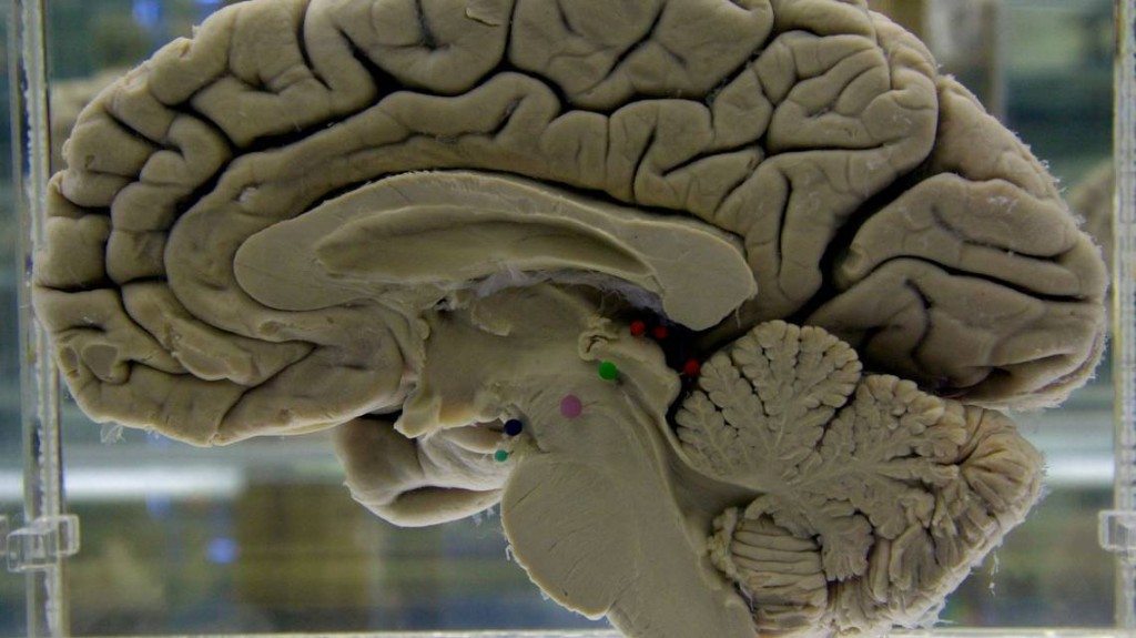 'Hopeless' Huntington's disease can be detected decades before it strikes, study says