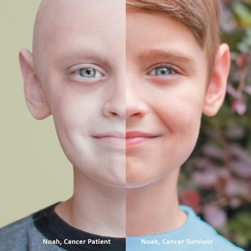 Powerful Split Portrait of a 7-Year-Old Cancer Survivor