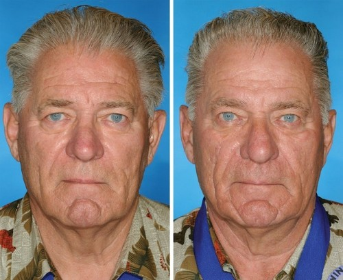 Identical Twins' Faces Reveal the Aging Effects of Smoking