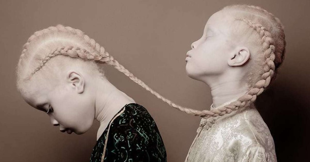 11-Year-Old Twins with Albinism Are Taking the Fashion World by Storm