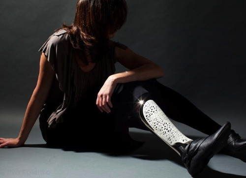 Beautifully Designed Prosthetic Limbs of the 21st Century