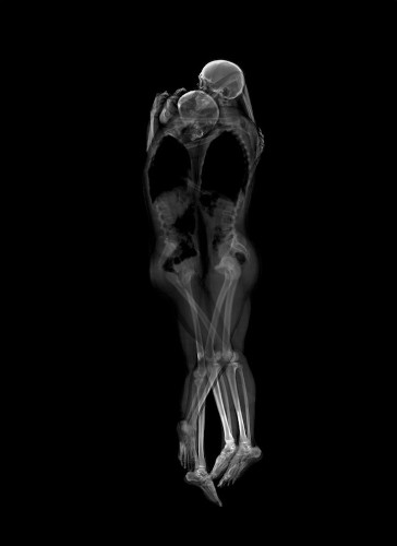 Beautifully Intimate X-Ray Portraits of Different Couples