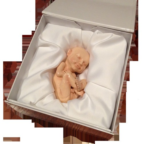 Custom 3D Fetus Sculptures Made from Ultrasound Images