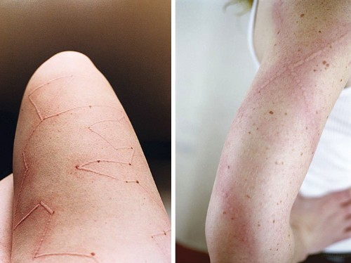 Artist Creates Body Designs with Her Sensitive Skin Disorder