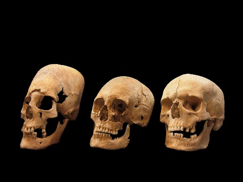 Pointy Skulls Belonged to 'Foreign' Brides, Ancient DNA Suggests