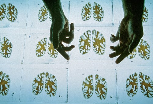 How Neuroscience Is Helping Answer the Question 'Who Am I?'