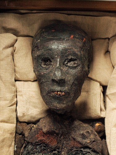 Mystery of King Tut's Death Solved? Maybe Not