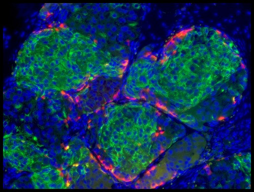 New Stem Cell Treatment, Successful in Mice, May Someday Cure Type 1 Diabetes
