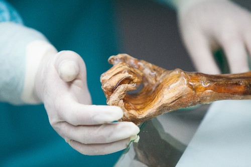 Iceman's Gut Holds Clues to Humans' Spread into Europe