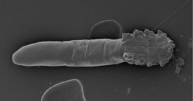 You Almost Certainly Have Mites On Your Face