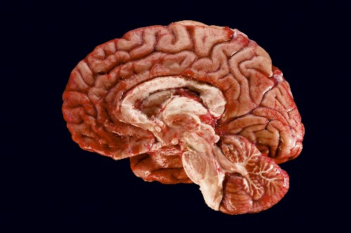 Trying to Be Less Stupid: The Hard Work of Brain Science