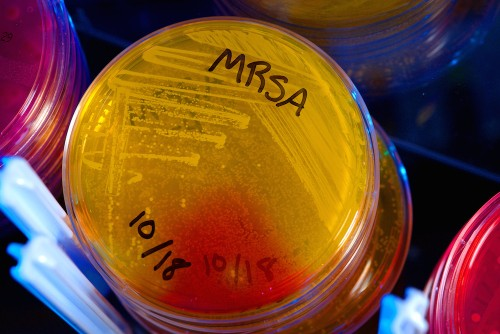 Pharma Industry Calls on Governments to Fund New Antibiotics