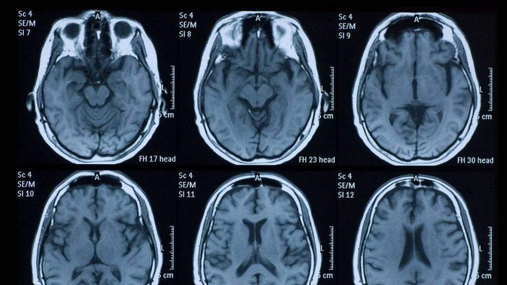 No Visible Bruises: Domestic Violence and Traumatic Brain Injury