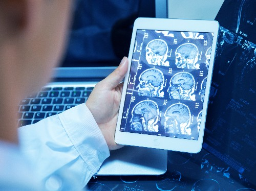 Scanning The Future, Radiologists See Their Jobs At Risk