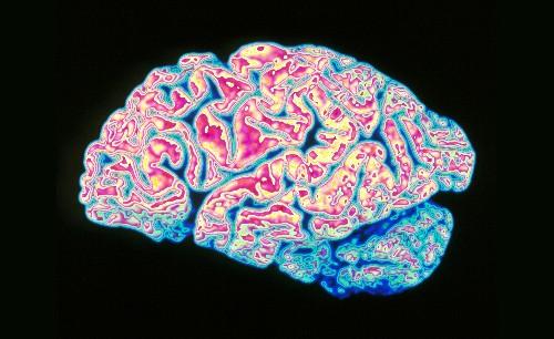 Brain's Link To Immune System Might Help Explain Alzheimer's