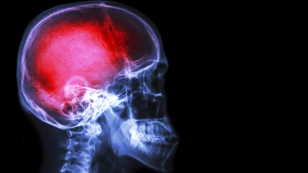 Pain Really Is All In Your Head And Emotion Controls Intensity